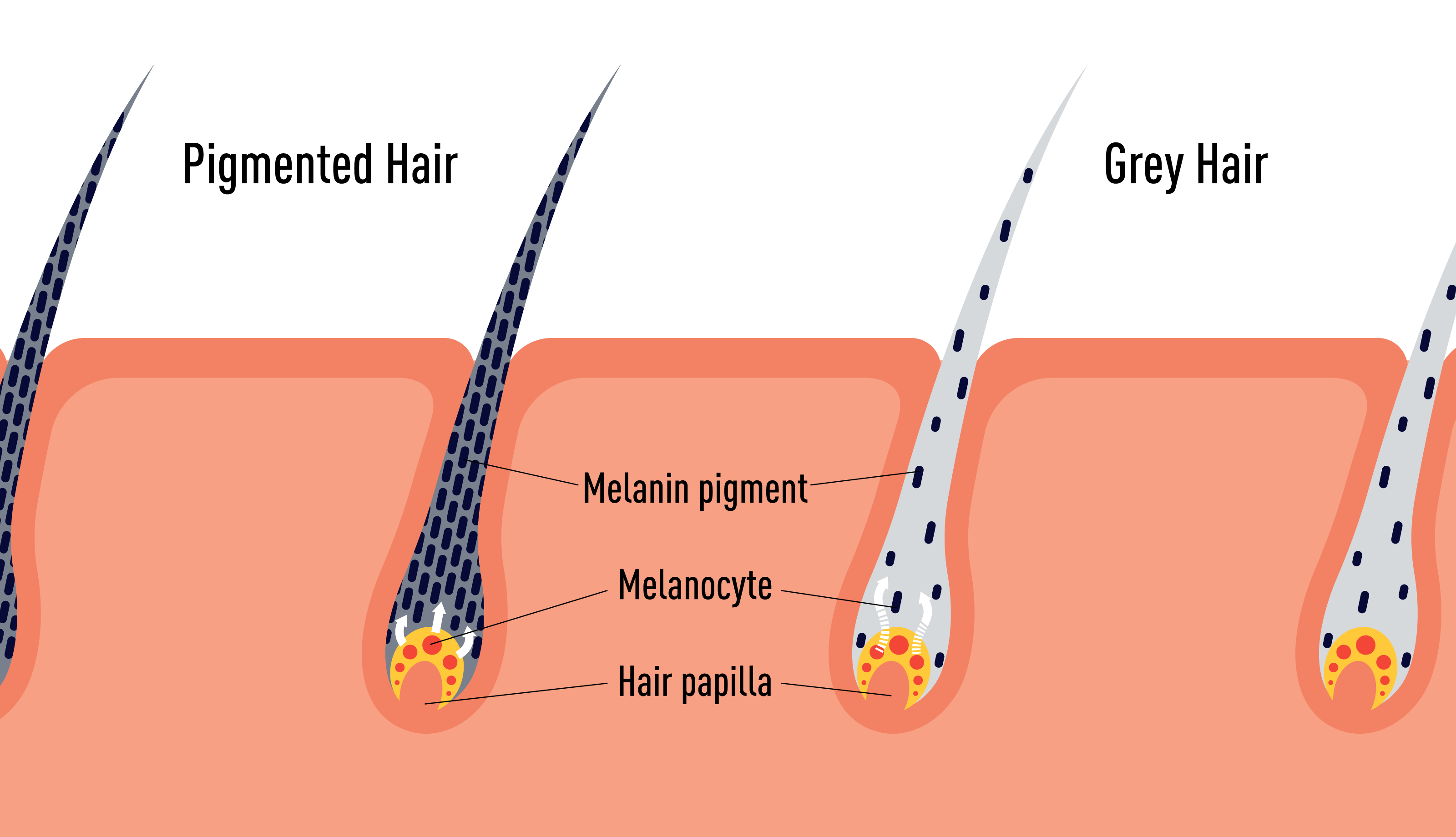 Grey hair is caused by decreased melanin Atlas Biomed illustration