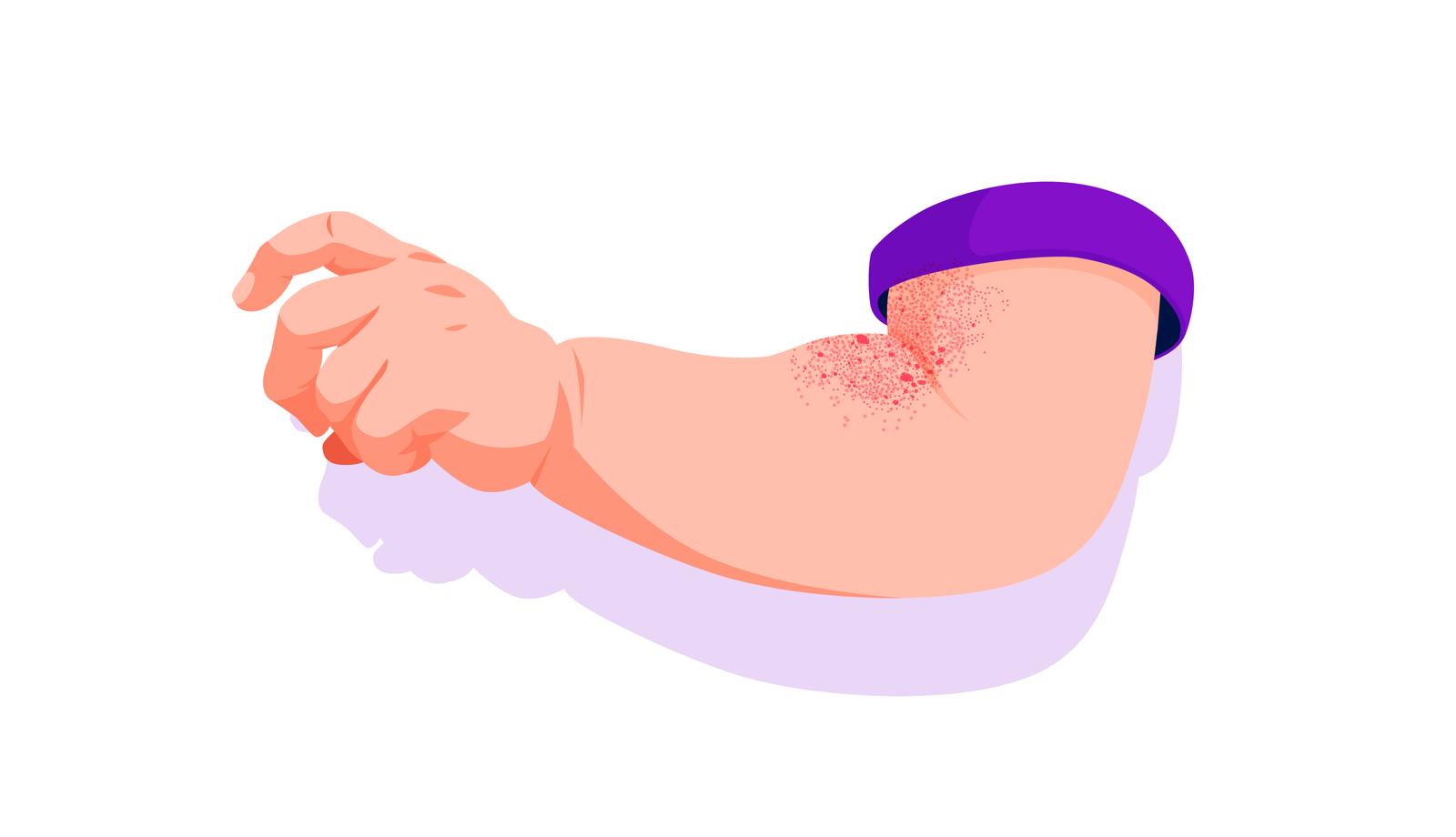 Atopic dermatitis rash in children.